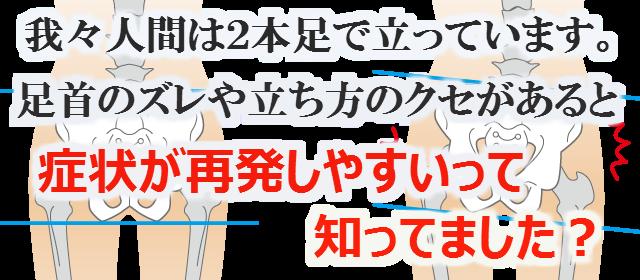 我々人間は2本足で立っています。足首のズレや立ち方のクセがあると症状が再発しやすいって知ってました?