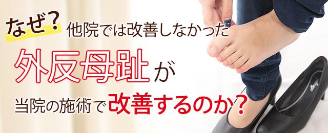 なぜ?他院では改善しなかった外反母趾が当院の施術で改善するのか?