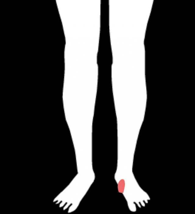 有痛性外脛骨