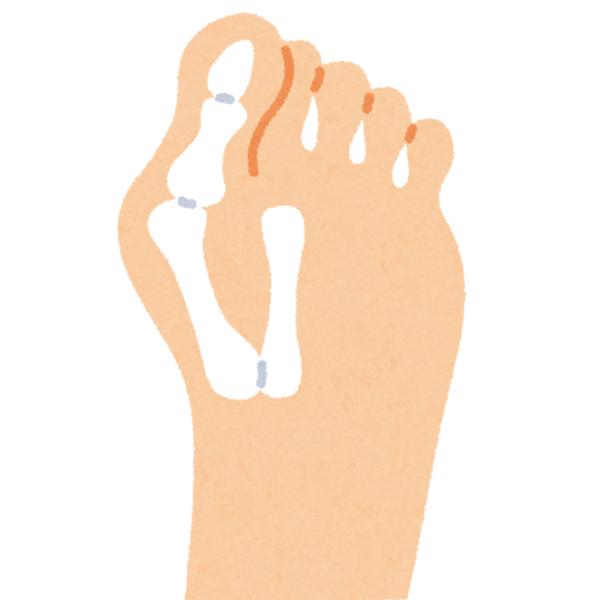 痛い 親指 裏 の 足 の 「足の指が痛い!」『原因』と『場所』から分類します