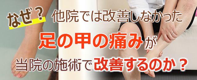 なぜ?他院では改善しなかった足の甲の痛みが当院の施術で改善するのか?