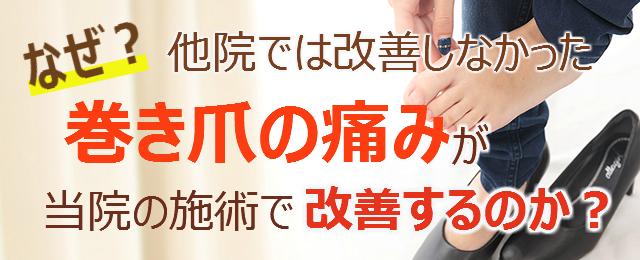 なぜ?他院では改善しなかった巻き爪の痛みが当院の施術で改善するのか?
