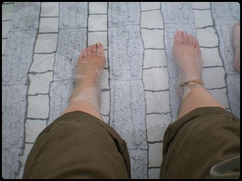 足の指の痛み