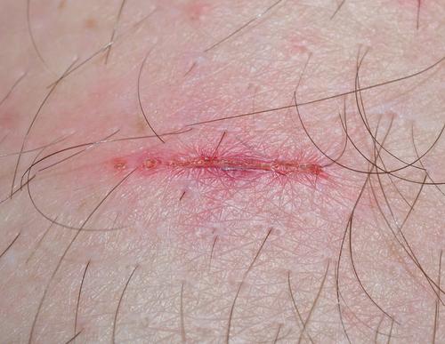 傷あと(古傷)のひきつりや痛み
