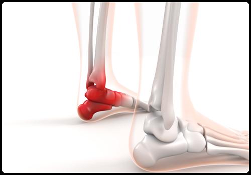 足首の内側の痛み