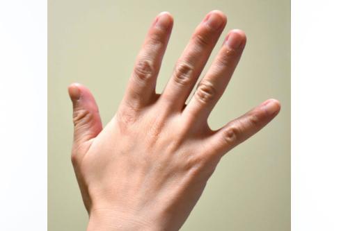 ばね指は難治性