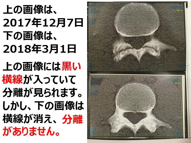 腰椎分離症CT